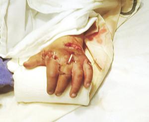 Ángel difícilmente  recuperará su mano