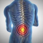 Lumbalgia, dolor de columna que afecta a jóvenes y adultos