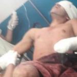 mutilan-manos-y-sacan-ojos-a-presunto-soldado-desertor-de-venezuela