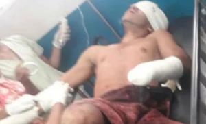 Mutilan manos y sacan ojos a presunto soldado desertor de Venezuela
