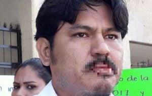 Docente se cose los labios para reclamar pago de sueldo en Chiapas