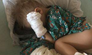 Niño de colorado contrae neumonía por tragarse palomitas de maíz