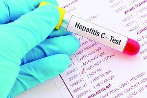 Luchan 10 contra  VIH y hepatitis C