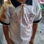 Niño llega con la playera llena de sangre; estremece caso bullying en Morelos