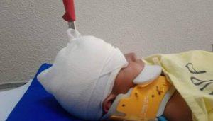 Menor encaja cuchillo en cabeza de su hermano