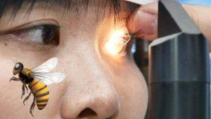 Acude al oftalmólogo por dolor; tenía 4 abejas en el ojo