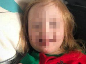 Niña con síndrome de Down es asesinada a golpes por el novio de su mamá