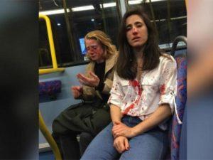 Golpean en Londres a dos mujeres… ¡por darse un beso!