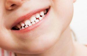 Dan vacaciones niños a dientes