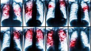 Ataca tuberculosis; por semana detectan 3 casos