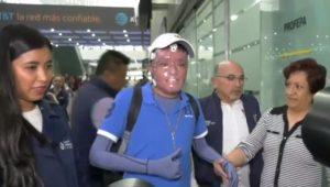 Llega a México el último joven lesionado por explosión de Tlahuelilpan