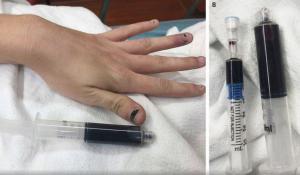 Mujer toma medicamento por su cuenta y su sangre se vuelve azul