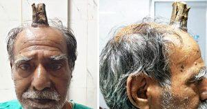 Le crece 'cuerno' en la cabeza a hombre de 74 años