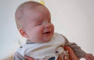 Sasha, bebé que nació sin ojos busca un hogar lleno de amor