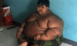 """Así luce ahora """"el niño más obeso del mundo"""""""