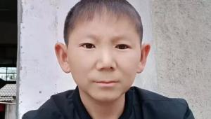 Una pedrada en la cabeza lo hace tener aspecto de niño eternamente
