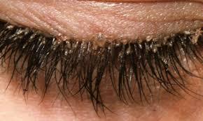 Advierten sobre peligros de piojos de pestañas