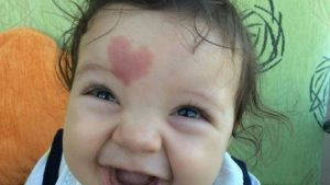 Bebé nace con marca roja de corazón en la frente y causa revuelo