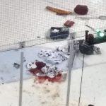 Terrible lesión durante partido de hockey sobre hielo: al portero casi le cortan la pierna (VIDEO)