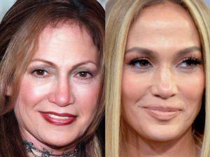 Así se verían algunas famosas sin cirugías, según un médico