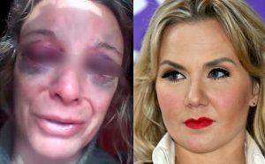 Michelle Vieth ingresa al Reclusorio Sur con golpes en la cara y en el cuerpo (VIDEO)