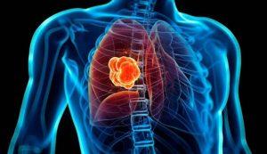 De pulmón, el cáncer más mortal