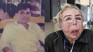 Hombre se inyectó aceite para bebé en la cara, pagó con desgracia