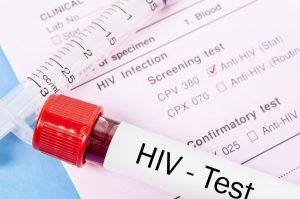 Arranca maratón de pruebas de HIV en Laredo, Texas