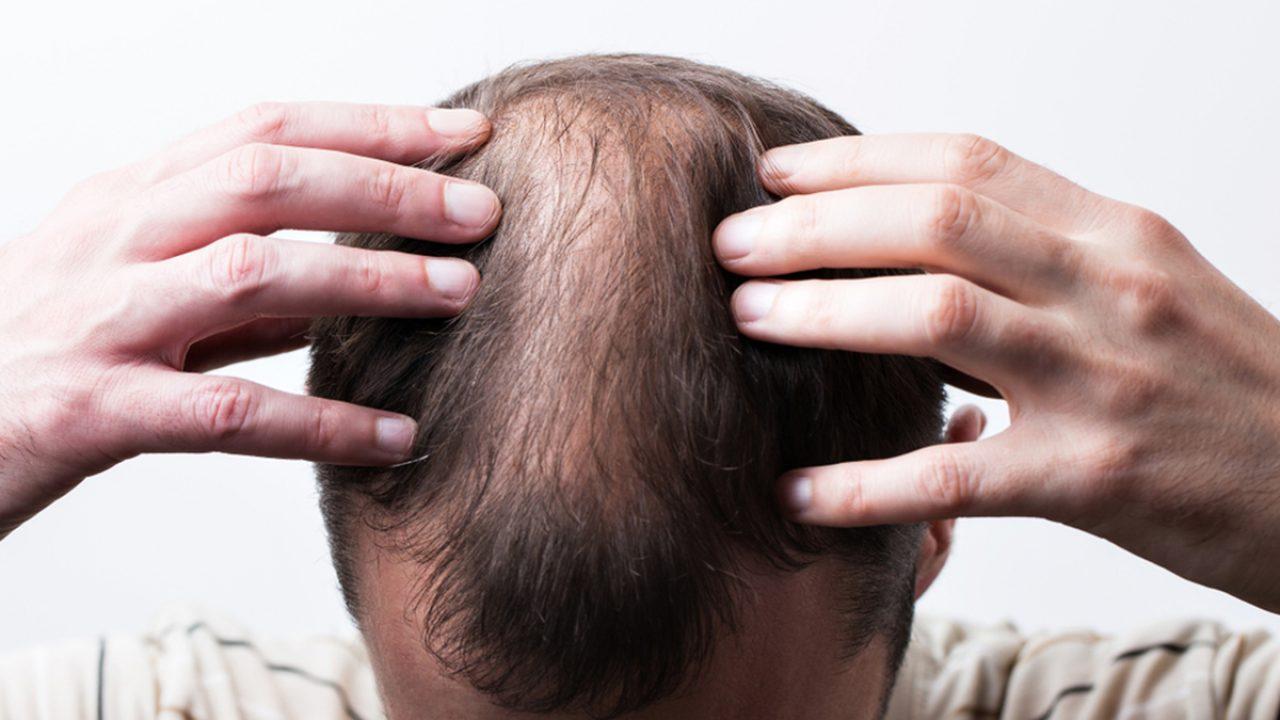 Científicos coreanos encuentran una cura para la calvicie