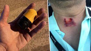 Manifestantes muestran heridas por balas de goma que les lanzó la policía