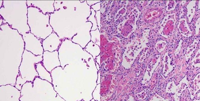 Así es el daño en los pulmones causado por el COVID-19