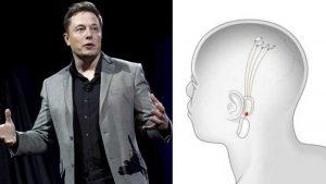 NeuraLink: qué es y cómo funciona el chip cerebral de Elon Musk