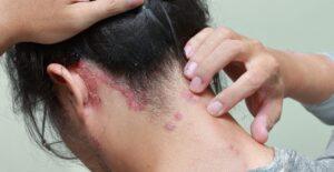 Tamaulipas, cuarto lugar nacional por casos de lepra