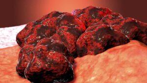 Abre una luz vacuna para tratar crecimiento de tumores cancerígenos