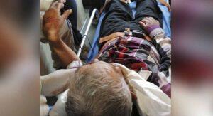 Caballo muerde a abuelito en el cuello y lo manda agonizante a hospital en Cd. Victoria