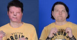 Realizan en EU el primer trasplante de rostro y manos (VIDEO)