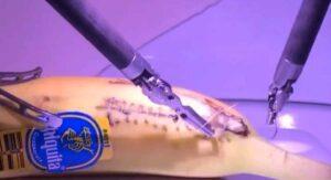 VIDEO: Desde Londres, médico opera a un plátano en Estados Unidos