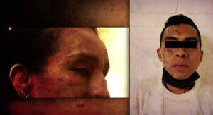 Mujer relata calvario con su expareja: 13 años de golpizas la dejaron ciega